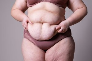 How to get rid of loose skin after weight loss
